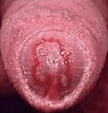 Male penis infected with Trichomoniasis