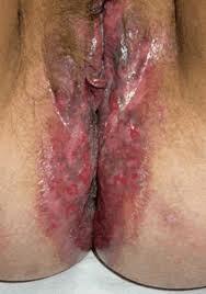 Outbreak of Herpes Simplex 2