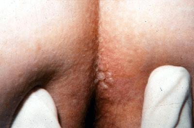 Herpes Simplex 2