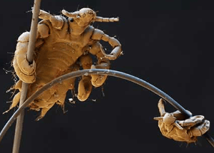Pubic Lice up close on hair