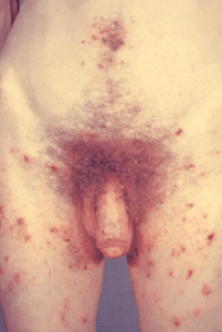 Man with Scabies infection