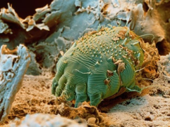 Scabies mite shown close up
