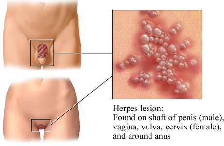 What Are The Side Effect Of Herpes 2