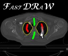 fastdraw_image