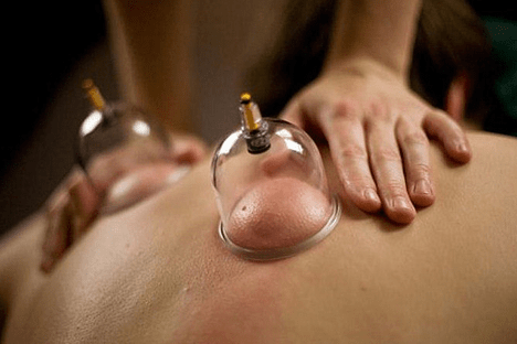 cupping1
