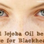 Could Jojoba Oil be your Cure for Blackheads?