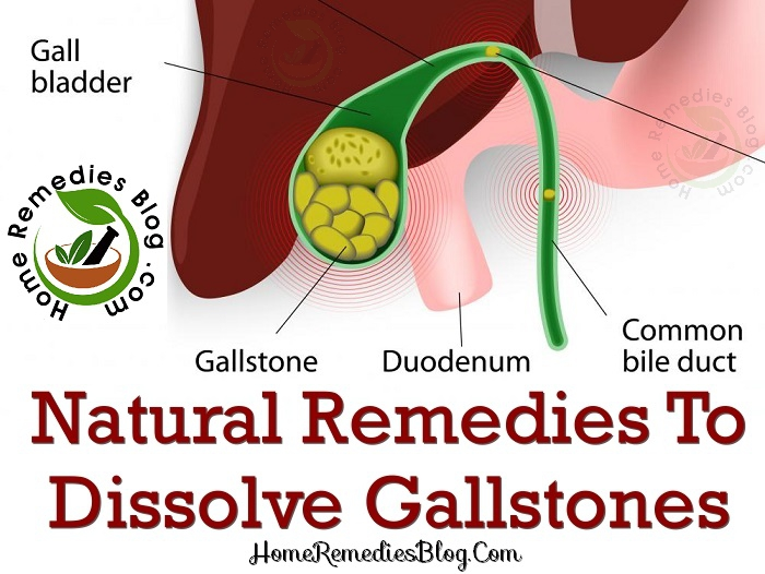 10 Efficient Home Remedies for Gallstones