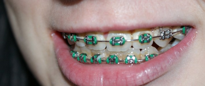 Orthodontic Treatment – Factors To Consider When Choosing An Orthodontist
