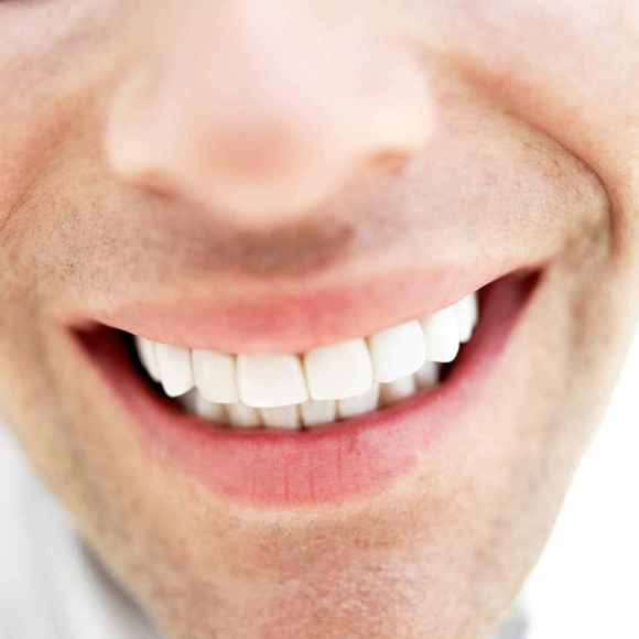 man-with-white-teeth
