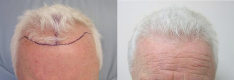 hair-transplant-santa-monica