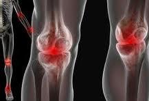 Cara untuk Mencegah Osteoarthritis