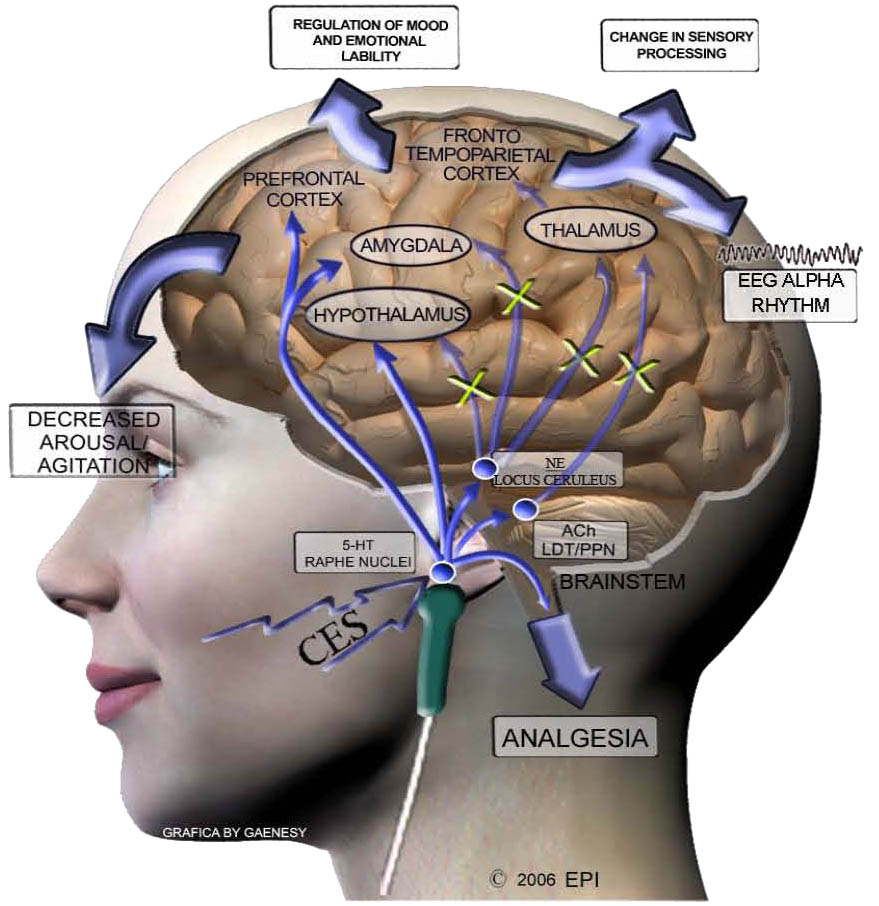 cranial electrostimulation therapy in depression evidence 2