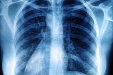 x-ray-of-rib-cage