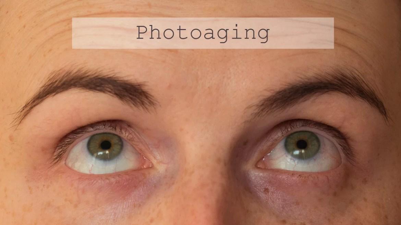 photoaging_thumb