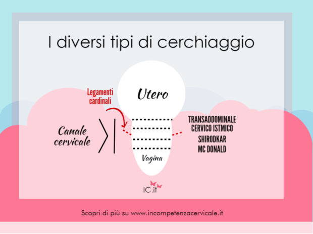 tipi cerchiaggio incompetenza cervicale ic.it