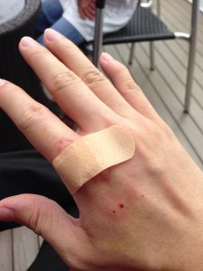hand bitten by dog with puncture wounds