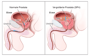 Nonsurgical treatment turns back the clock, shrinks enlarged  prostate