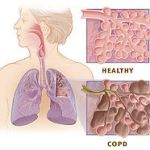 Stem cells for COPD including emphysema: are we there yet?