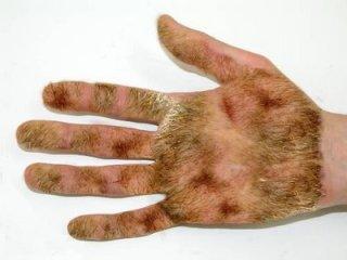 Mão calejada de tanta punheta