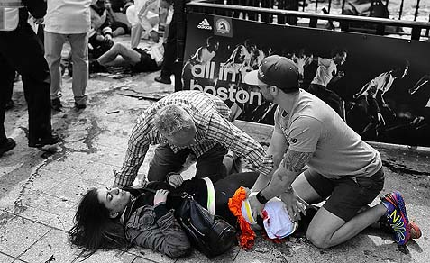 Victim being treated after Boston marathon terror bomb blast.