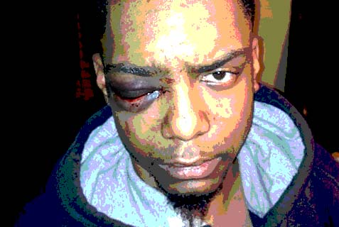 What happened on Sunday, Dec. 1 that provoked the alleged Haredi outpouring of violence that resulted in serious bodily injury to one Taj Patterson, 22, on a street corner in Williamsburg, Brooklyn, at 4:00 in the morning?
