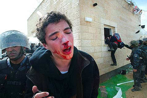 An injured Jewish boy is being hauled to the waiting bus by brutal Israeli policemen in the Samaria outpost Amona, Jan. 1, 2006. This deportation took place under the regime of Acting Prime Minister Ehud Olmert, who had just replaced the ailing Ariel Sharon, the architect of a much larger deportation of thousands of Jews from Gush Katif. Three days later, Sharon was felled by a massive stroke that left him in a vegetative state. Olmert himself and a very long list of officials involved in those expulsions were hit by tragedies, some minor, some major.