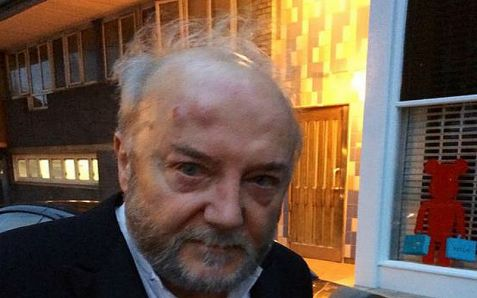 Anti-Semitic Briitsh MP George Galloway poses with a lump on his head after being assaulted.