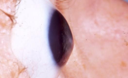 Keratoconus_eye
