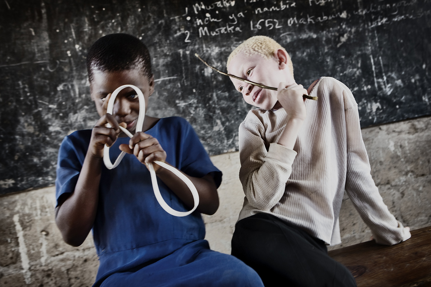 Lack of pigment makes it difficult to be outdoors in the daytime. Albinism is a much more serious condition in Africa than it is in the Western world.