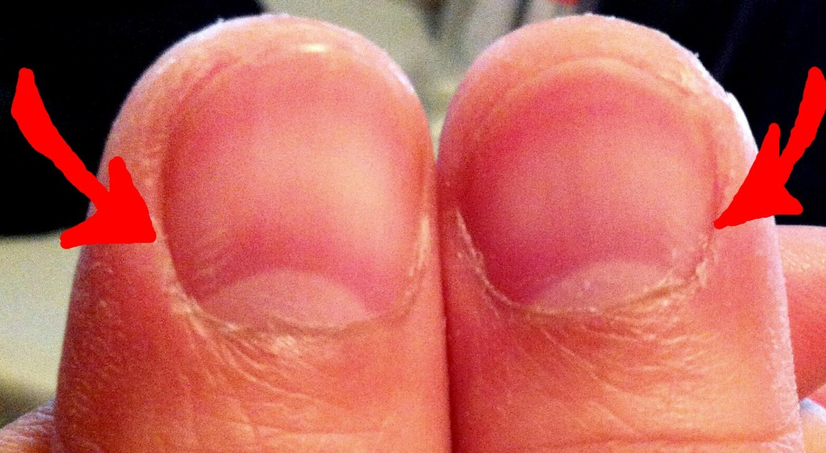Thumbnail Damage From Double Overhand Hook Grip Deadlifts?