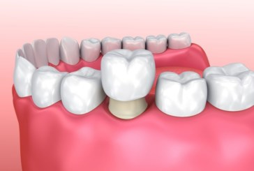 Get Familiar with Dental Crowns Mechanism and Installation