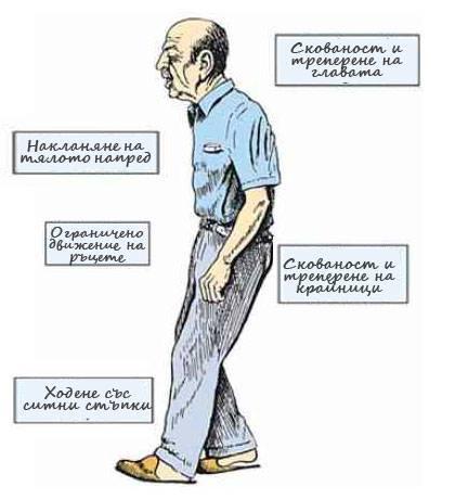 Болест на Паркинсон Неконвенционална Рехабилитация Кан Терапия