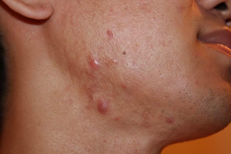 Facial keloids in white skin individual