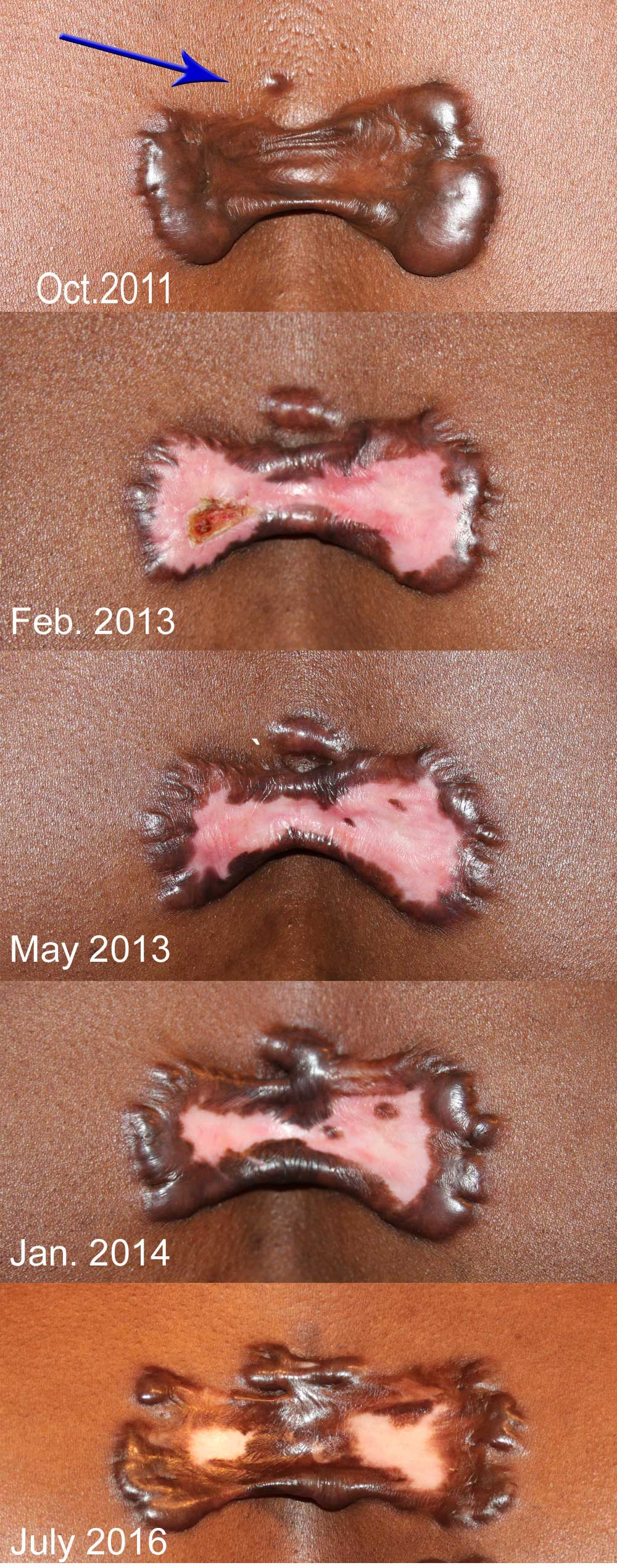 Growth of a small keloid lesion nearby a large chest wall keloid.
