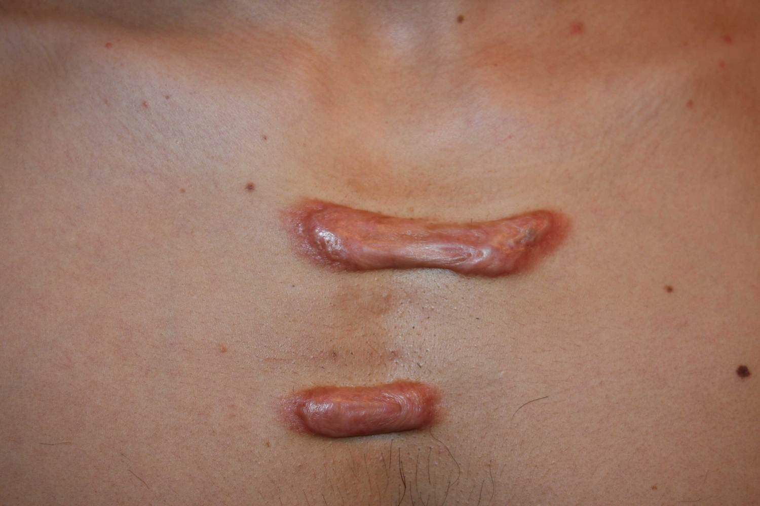 Keloid Removal On Chest? (photo) Doctor Answers, Tips