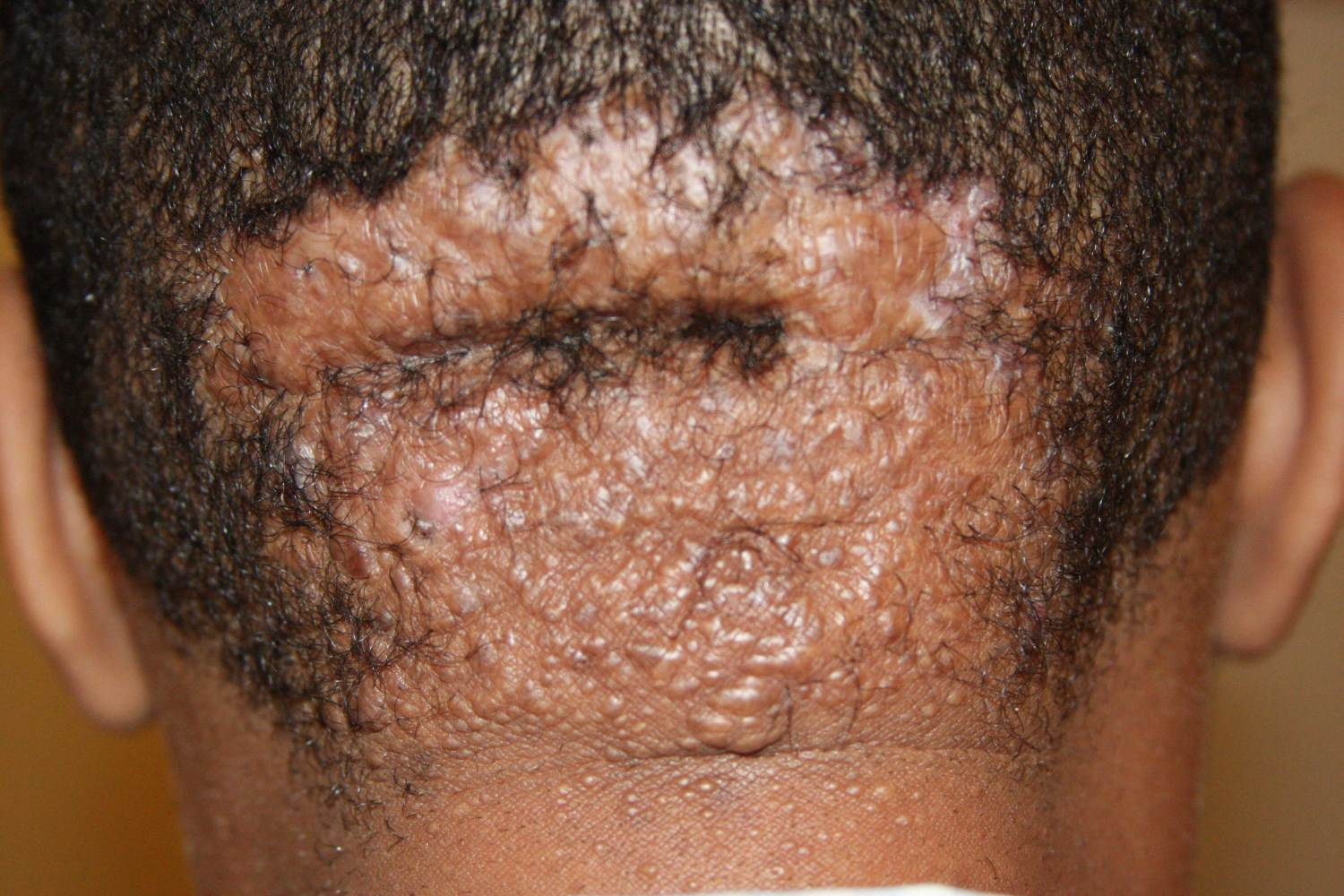 Widespread scalp involvement with keloid