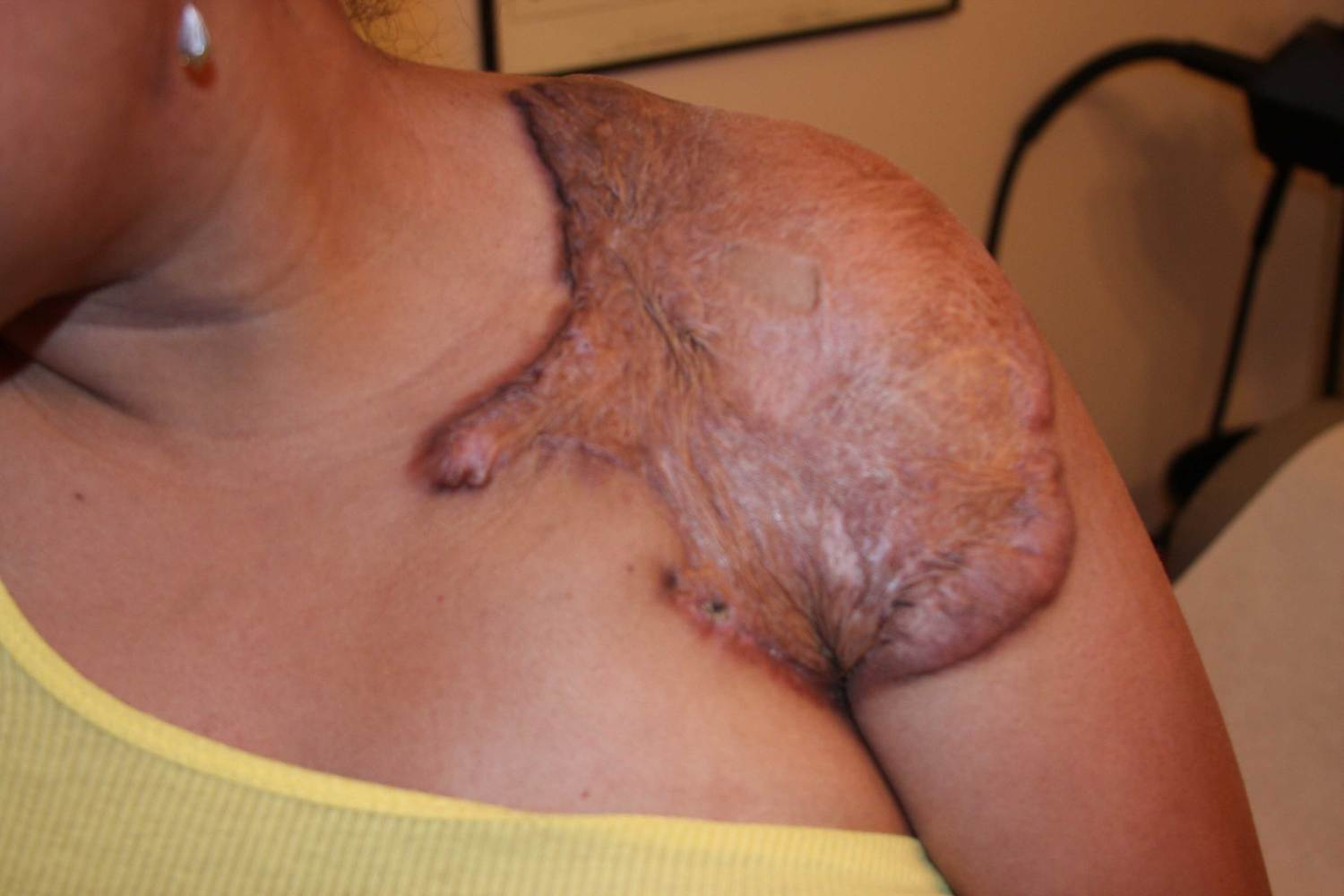 Large Keloid Patch after keloid surgery