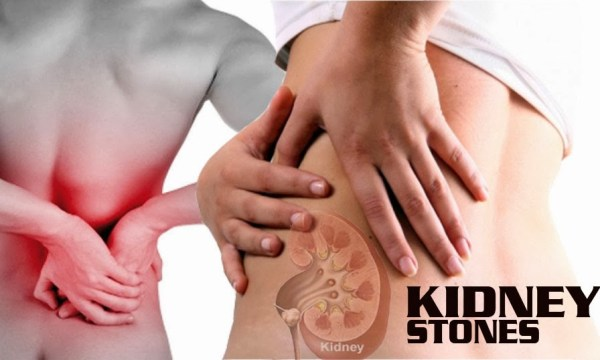 Kidney stone pain stages and warning signs