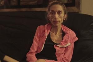 Rachael Farrokh anoressica, pesa 20 chili e rischia la vita. Il video appello