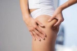 Cellulite, come sconfiggerla: sport, alimentazione e creme. Ecco quali