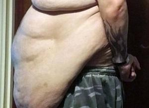 Perde un terzo del peso, ora ha 12 kg di pelle in eccesso FOTO5