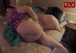 Perde 115 kg col bypass gastrico, poi abusa antidolorifici e rischia morte8