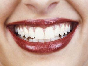 Denti bianchi, 5 buone abitudini per proteggere lo smalto