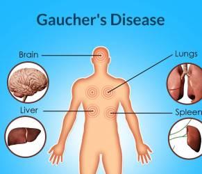 Malattia di Gaucher, medici chiedono terapia domiciliare