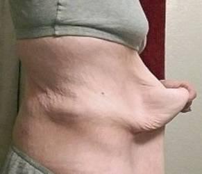 Celia perde 100 chili: ora ha 9 chili di pelle in eccessofff