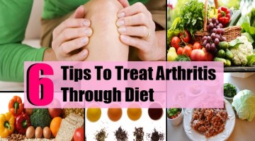 6 Tips To Treat Arthritis Through Diet