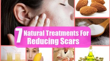 7 Natural Treatments For Reducing Scars