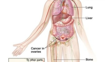 Treatment For Stage 4 Ovarian Cancer