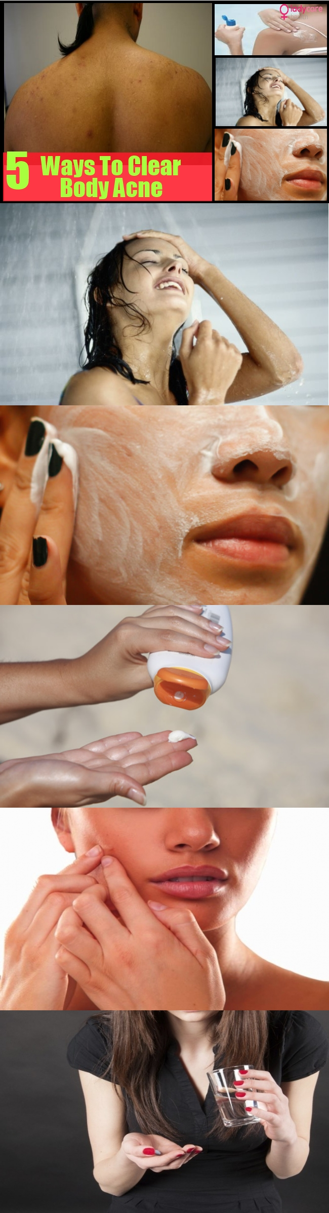 5 Tips On How To Clear Body Acne