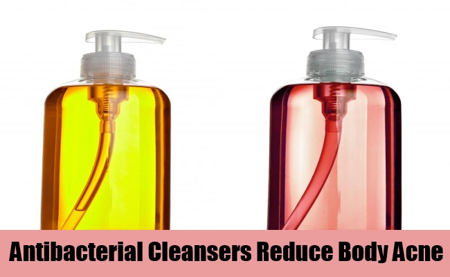 Antibacterial Cleansers Reduce Body Acne